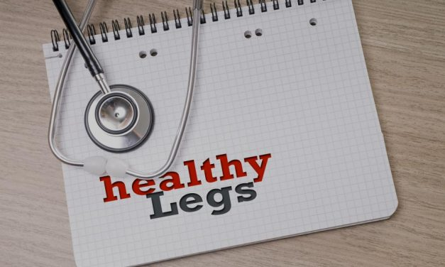 Why You Should Get Rid of Your Varicose Veins Now – Stop Procrastinating
