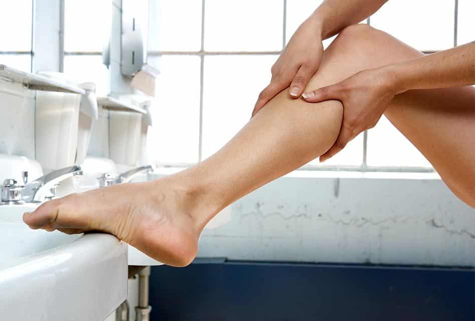 Creams for Spider Veins