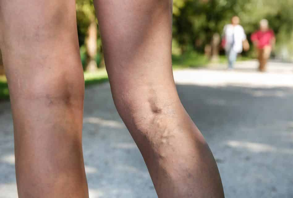 Varicose Vein Stripping Incredibly Sometimes Has Street Cred