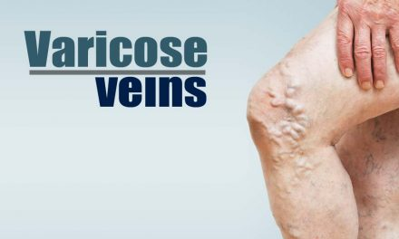 You Probably Won't Read This Varicose Vein Article – But Should