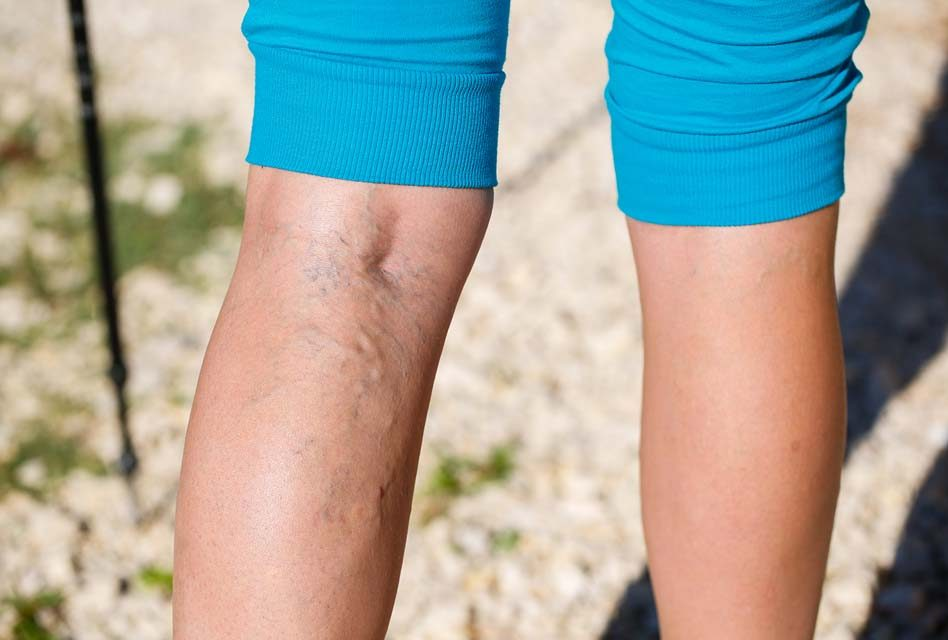 5 Facts About Varicose Veins That'll Impress Your Friends and Family