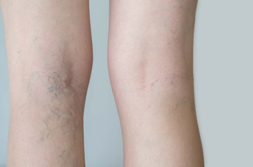 leg veins