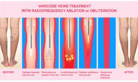 What is the Best Treatment for Varicose Veins? – Happel Laser & Vein Center