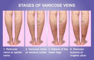 the stages of varicose veins