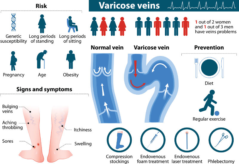 varicose veins risks treatment and symptoms