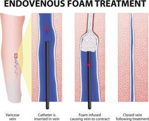 foam sclerotherapy for varicose veins