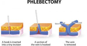 phlebectomy of varicose veins