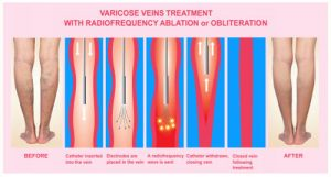 radiofrequency treatment for varicose veins